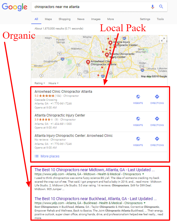 Local SEO Packages local Pack & Organic Results